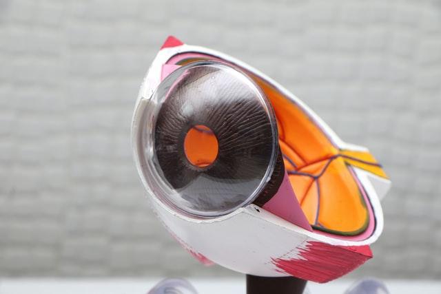 ochi cataracta